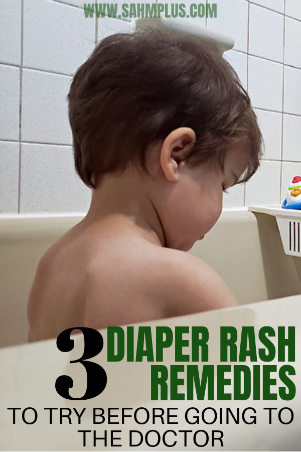 Parents, you need to know these 3 diaper rash remedies for your baby or toddler. 3 tips to treat diaper rash before seeking medical attention. | sahmplus.com