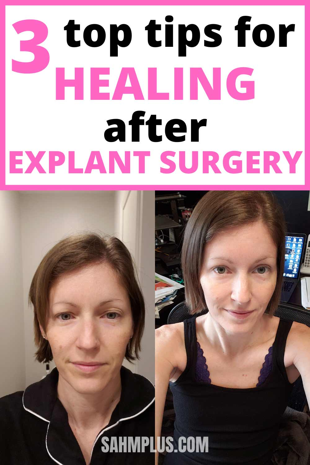 3 recovery tips after explant surgery. Natural healing after surgery