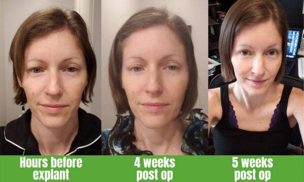Healing after surgery - 3 photos over 5 weeks