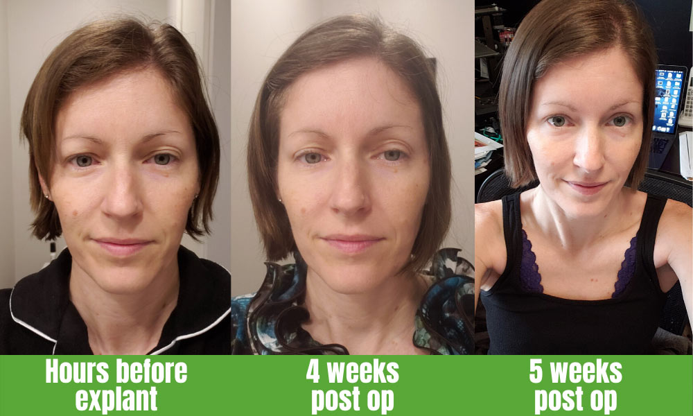 Healing after surgery - 3 photos from a span of 5 weeks.  1) hours before explant 2) 4 weeks post op 3) 5 weeks post op