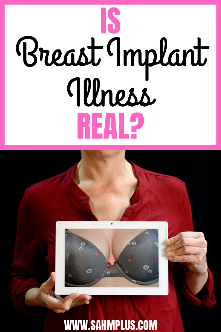 Is breast implant illness real? Should you remove breast implants?  The reasons I took the leap of faith