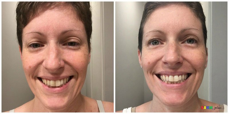 Before and after using Himalaya Botanique Complete Care Toothpaste (whitening) ©Ivy www.sahmplus.com